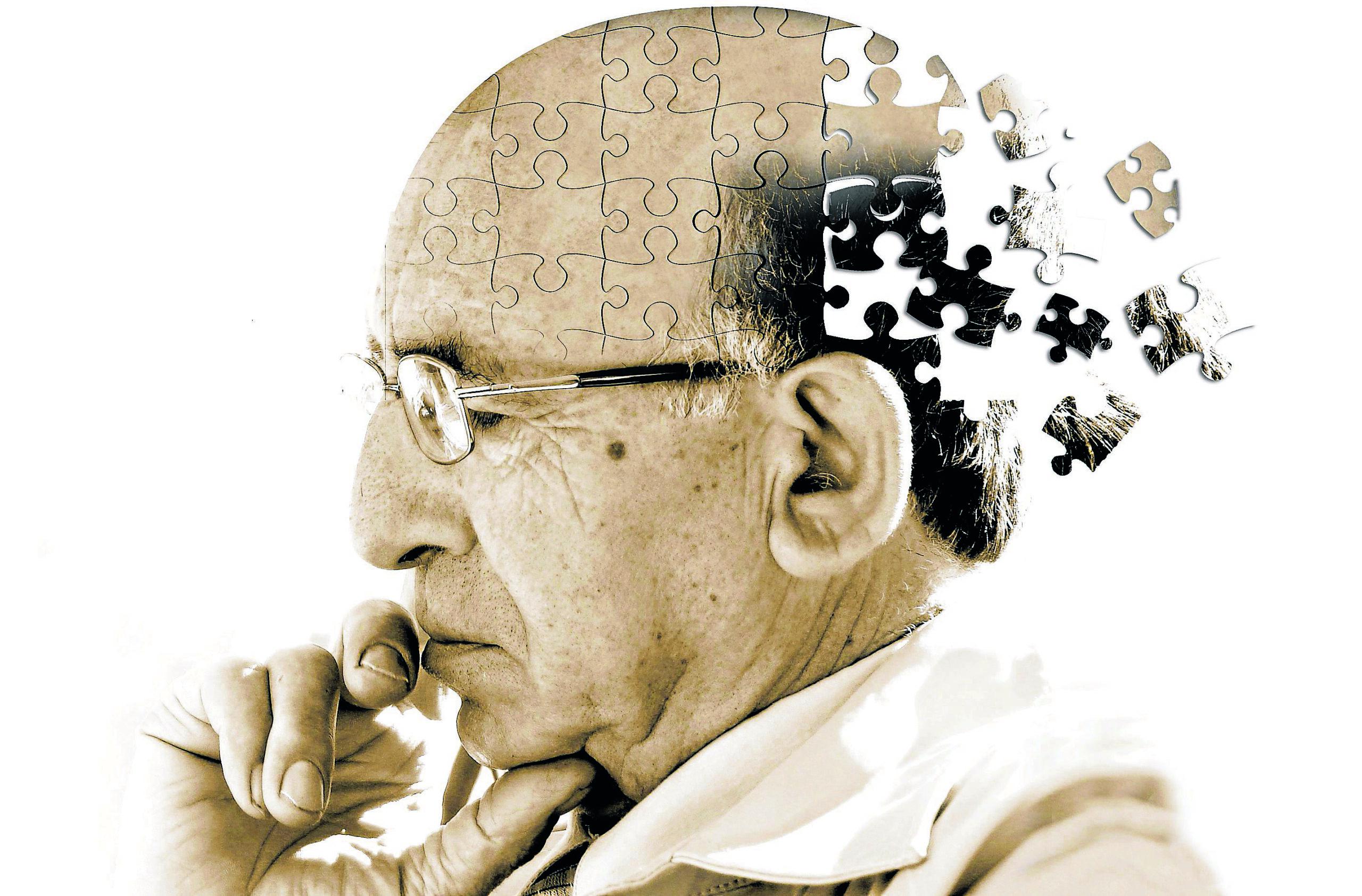 Cientistas indicam que exercícios físicos podem prevenir Alzheimer
